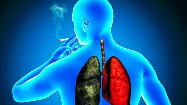 cancer-pulmonar